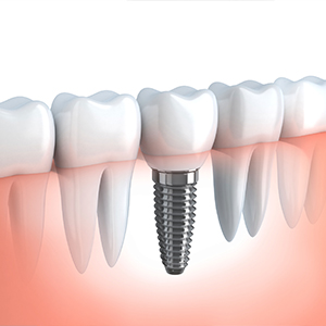Dental-Implant-Blog