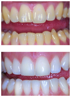 Teeth Whitening in Preston, our number one Cosmetic Dental Treatment