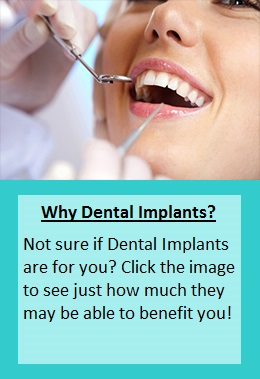 why-dental-implants