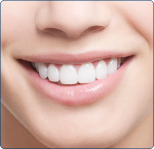 cosmetic-dentistry-preston