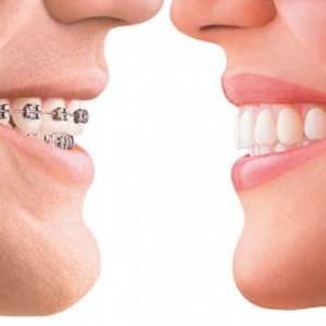 teeth-straightening-preston
