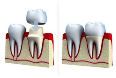 dental-crowns-preston